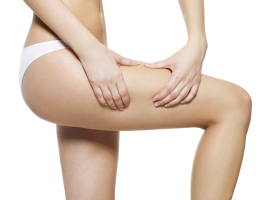 Cellulite and critical areas